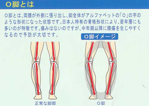 O脚用,オー脚用,膝痛用,インソール,靴の中敷き